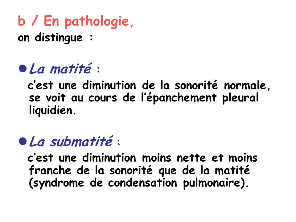 b / En pathologie, on distingue : La matité : cest une diminution de la sonorité normale, se voit au cours de lépanchement pleural liquidien.