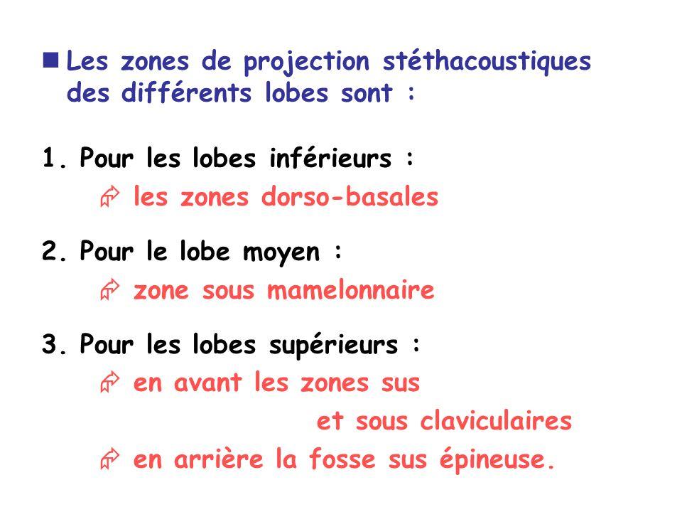 Les zones de projection stéthacoustiques des différents lobes sont : 1.