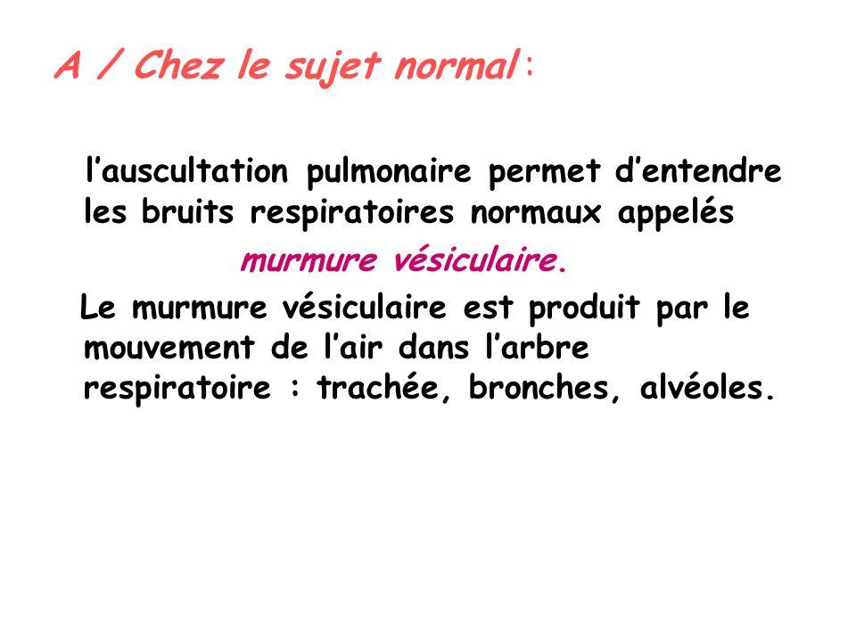 A / Chez le sujet normal : lauscultation pulmonaire permet dentendre les bruits respiratoires normaux appelés murmure vésiculaire.