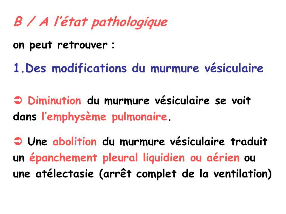 B / A létat pathologique on peut retrouver : 1.Des modifications du murmure vésiculaire Diminution du murmure vésiculaire se voit dans lemphysème pulmonaire.
