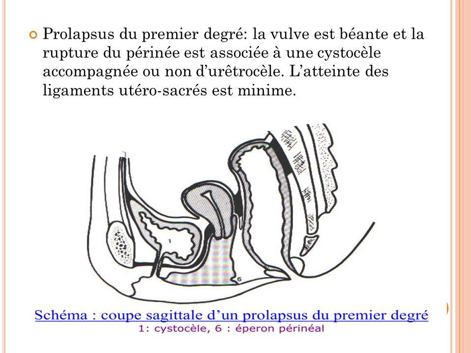 Prolapsus du premier degré: la vulve est béante et la rupture du périnée est associée à une cystocèle accompagnée ou non durêtrocèle. Latteinte des li