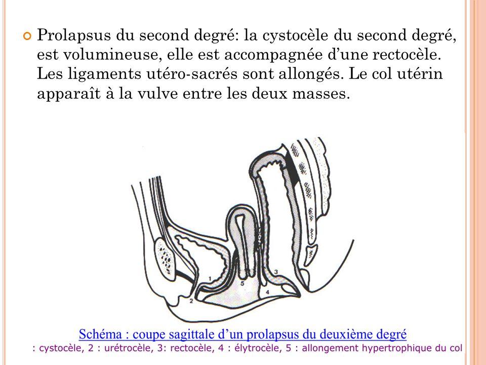 Prolapsus du second degré: la cystocèle du second degré, est volumineuse, elle est accompagnée dune rectocèle. Les ligaments utéro-sacrés sont allongé