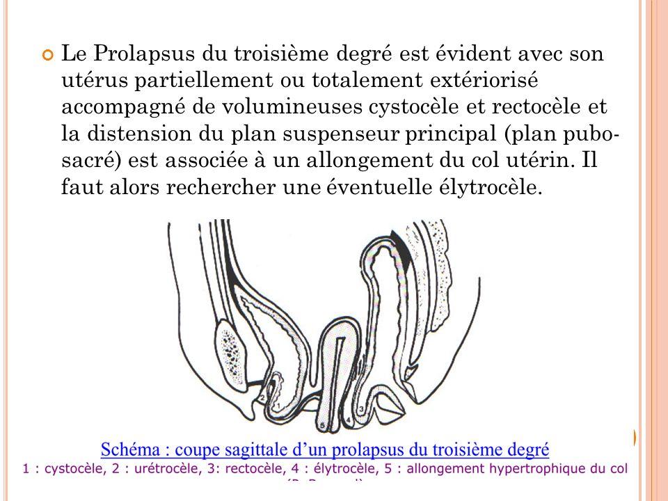 Le Prolapsus du troisième degré est évident avec son utérus partiellement ou totalement extériorisé accompagné de volumineuses cystocèle et rectocèle