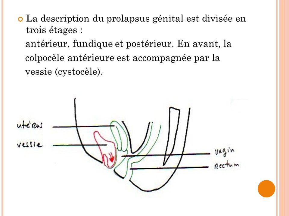 La description du prolapsus génital est divisée en trois étages : antérieur, fundique et postérieur. En avant, la colpocèle antérieure est accompagnée
