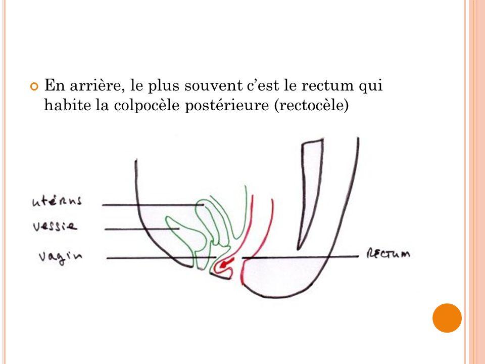 En arrière, le plus souvent cest le rectum qui habite la colpocèle postérieure (rectocèle)