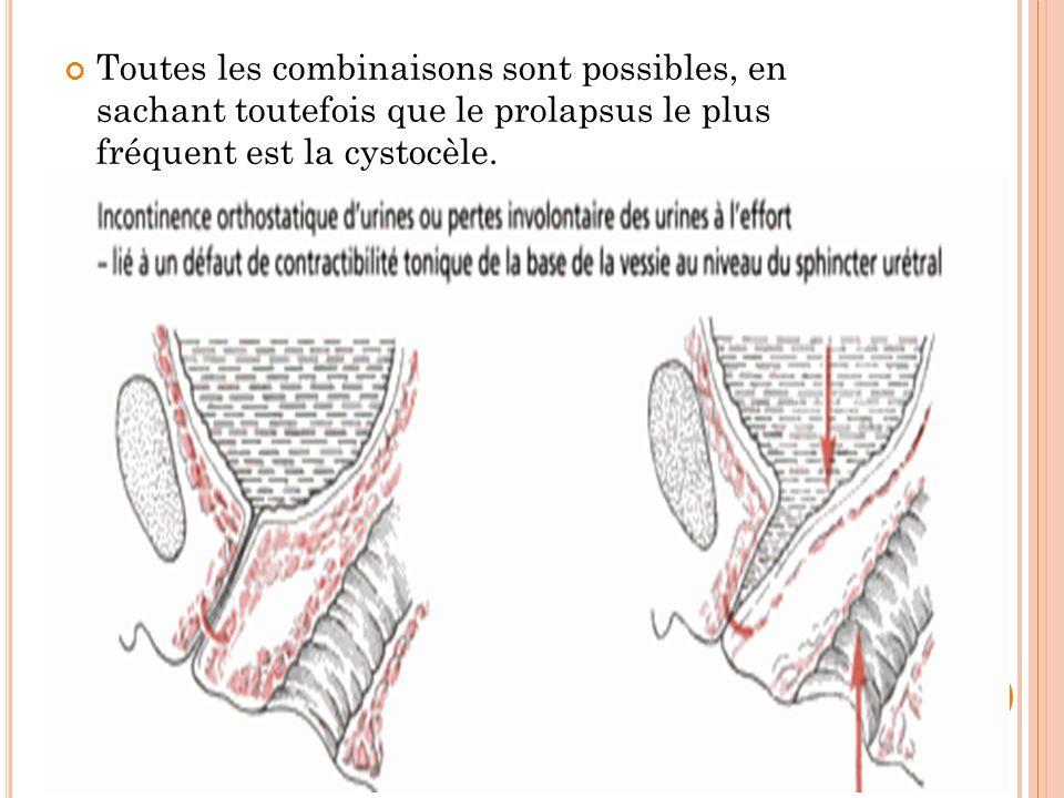 Toutes les combinaisons sont possibles, en sachant toutefois que le prolapsus le plus fréquent est la cystocèle.