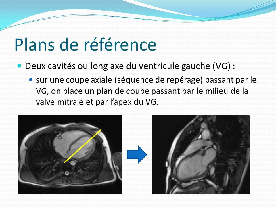 Plans de référence Deux cavités ou long axe du ventricule gauche (VG) : sur une coupe axiale (séquence de repérage) passant par le VG, on place un pla