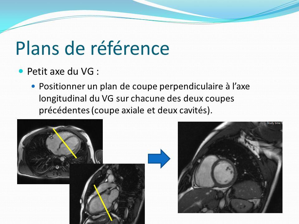 Plans de référence Petit axe du VG : Positionner un plan de coupe perpendiculaire à laxe longitudinal du VG sur chacune des deux coupes précédentes (c