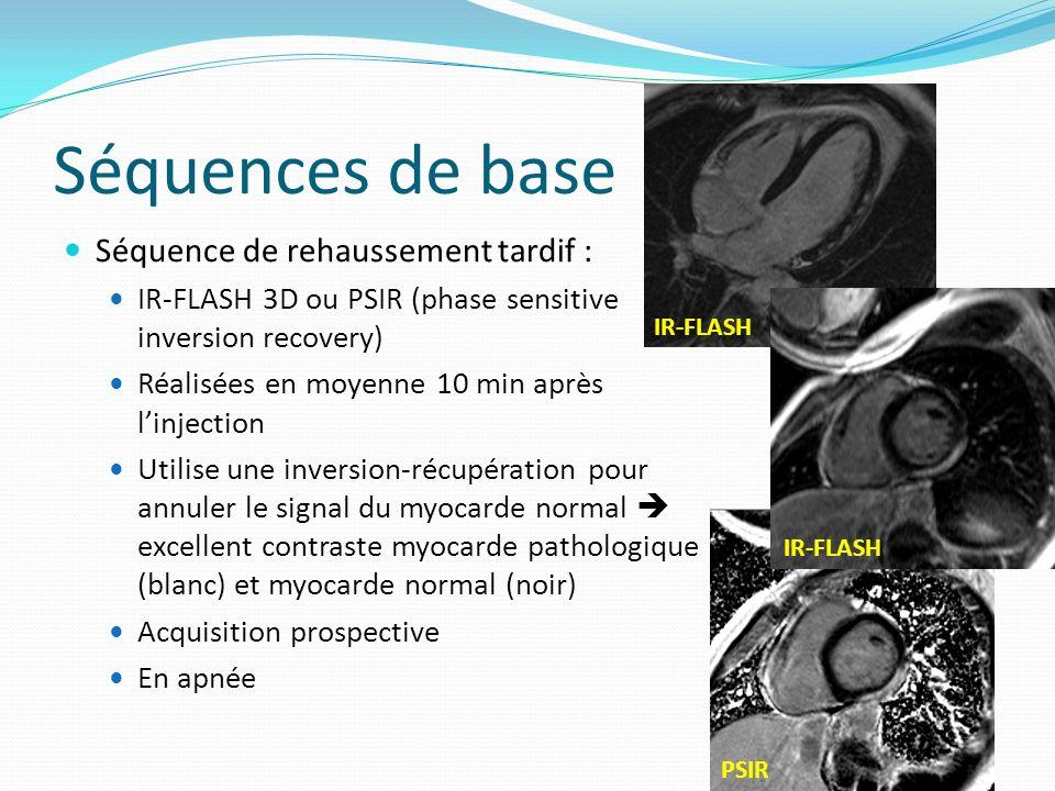 Séquences de base Séquence de rehaussement tardif : IR-FLASH 3D ou PSIR (phase sensitive inversion recovery) Réalisées en moyenne 10 min après linject
