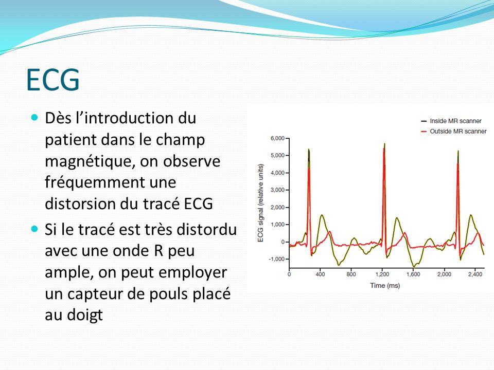 ECG Dès lintroduction du patient dans le champ magnétique, on observe fréquemment une distorsion du tracé ECG Si le tracé est très distordu avec une o