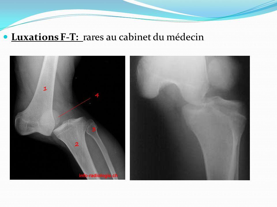 Luxations F-T: rares au cabinet du médecin