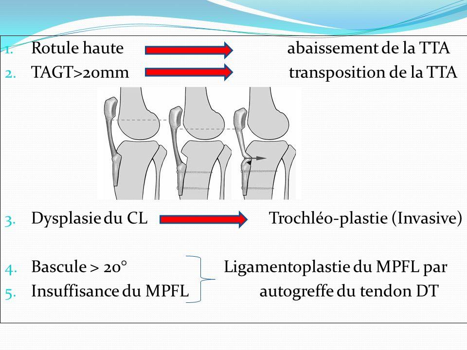 1. Rotule haute abaissement de la TTA 2. TAGT>20mm transposition de la TTA 3. Dysplasie du CL Trochléo-plastie (Invasive) 4. Bascule > 20° Ligamentopl
