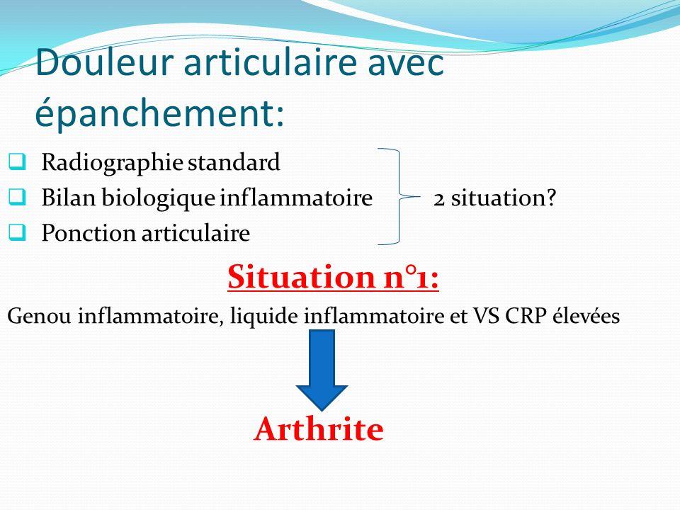 Douleur articulaire avec épanchement: Radiographie standard Bilan biologique inflammatoire 2 situation.