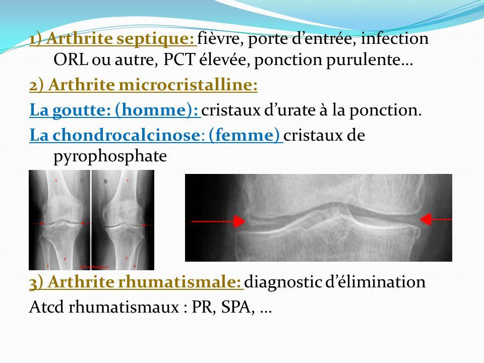1) Arthrite septique: fièvre, porte dentrée, infection ORL ou autre, PCT élevée, ponction purulente… 2) Arthrite microcristalline: La goutte: (homme): cristaux durate à la ponction.