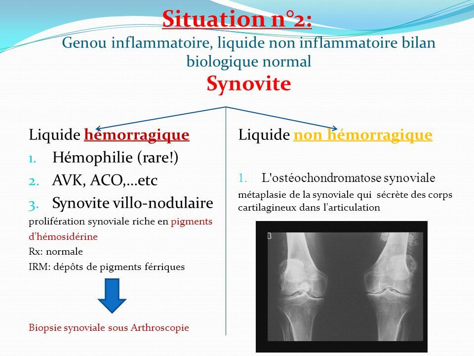 Situation n°2: Genou inflammatoire, liquide non inflammatoire bilan biologique normal Synovite Liquide hémorragique 1. Hémophilie (rare!) 2. AVK, ACO,