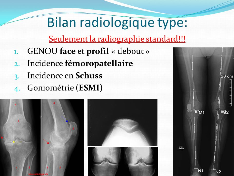 Bilan radiologique type: Seulement la radiographie standard!!! 1. GENOU face et profil « debout » 2. Incidence fémoropatellaire 3. Incidence en Schuss