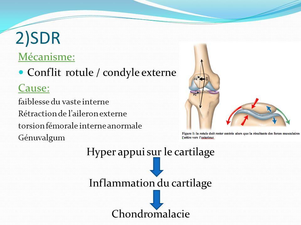 2)SDR Mécanisme: Conflit rotule / condyle externe Cause: faiblesse du vaste interne Rétraction de laileron externe torsion fémorale interne anormale Génuvalgum Hyper appui sur le cartilage Inflammation du cartilage Chondromalacie