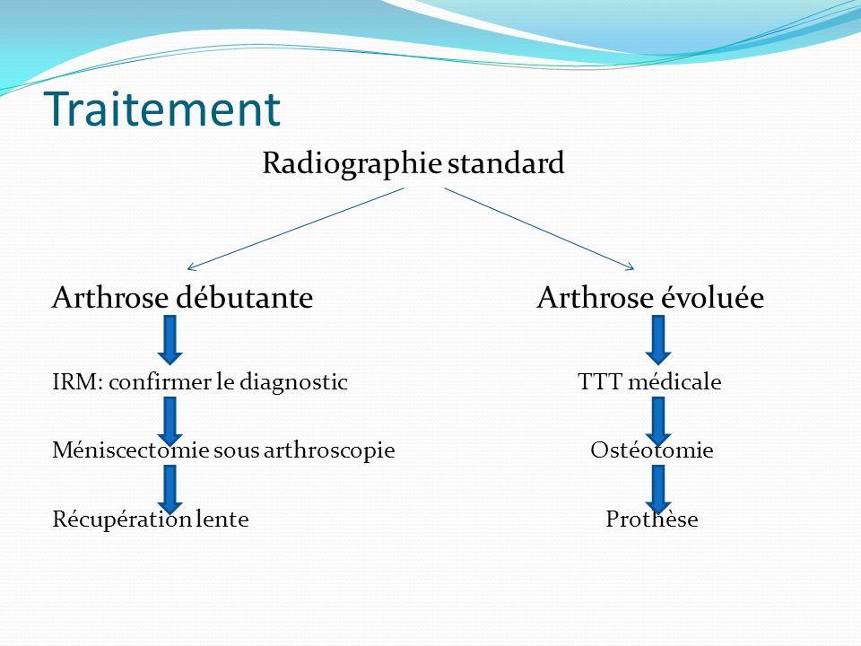 Traitement Radiographie standard Arthrose débutante Arthrose évoluée IRM: confirmer le diagnostic TTT médicale Méniscectomie sous arthroscopie Ostéotomie Récupération lente Prothèse