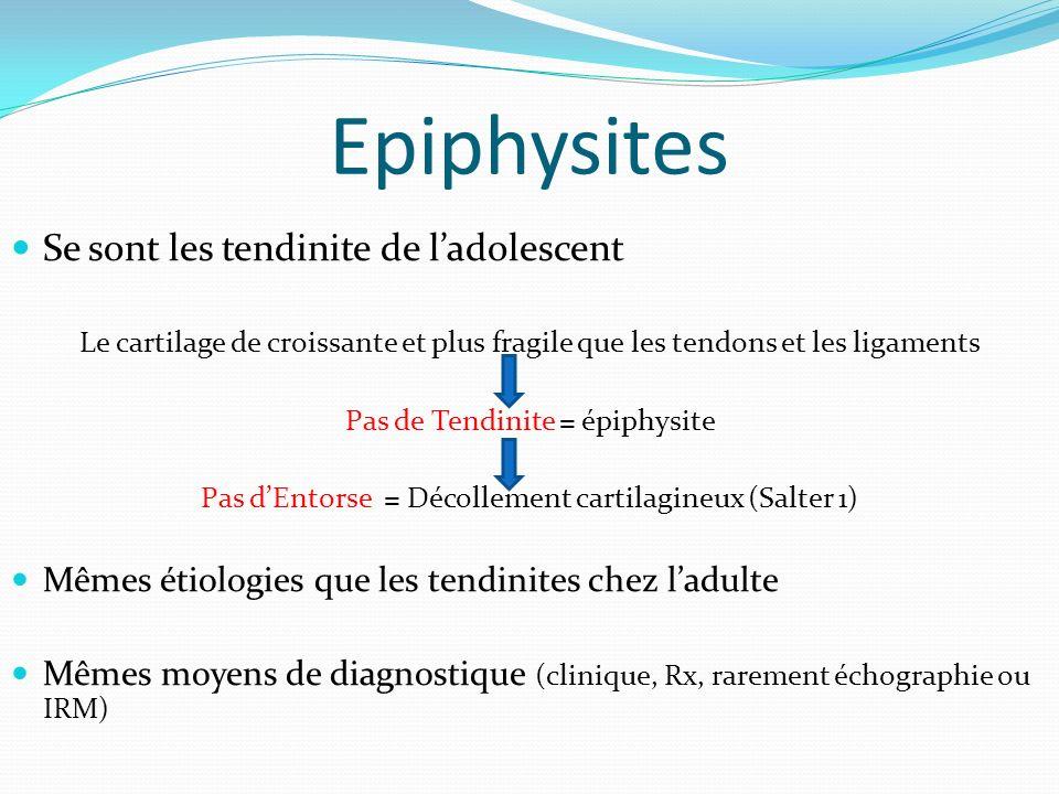 Epiphysites Se sont les tendinite de ladolescent Le cartilage de croissante et plus fragile que les tendons et les ligaments Pas de Tendinite = épiphy