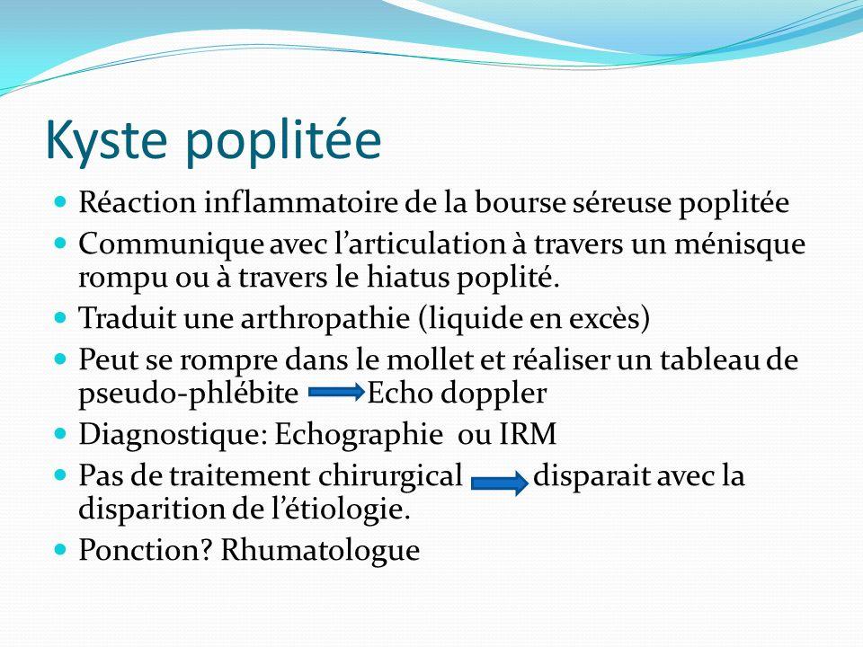 Réaction inflammatoire de la bourse séreuse poplitée Communique avec larticulation à travers un ménisque rompu ou à travers le hiatus poplité.