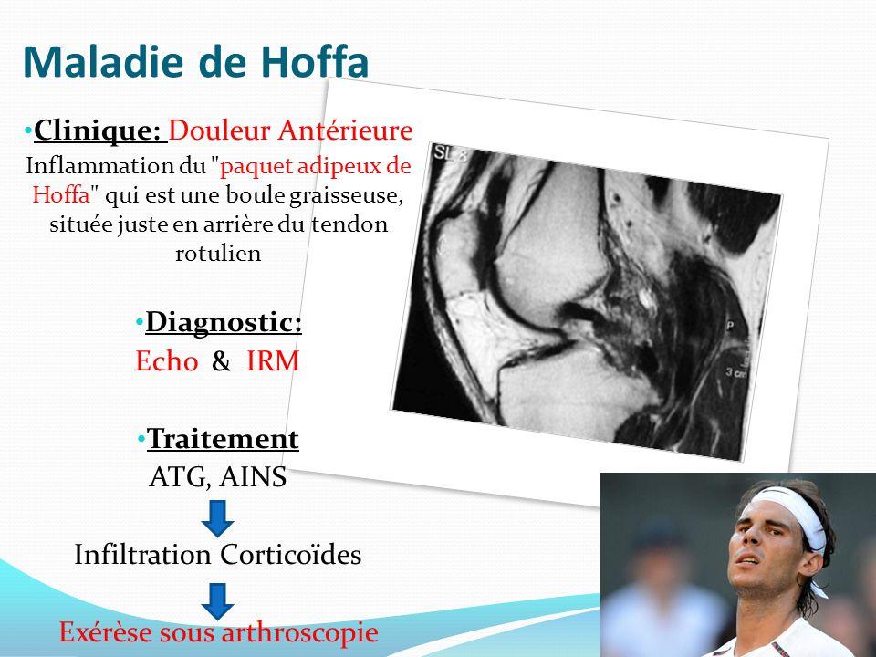 Maladie de Hoffa Clinique: Douleur Antérieure Inflammation du paquet adipeux de Hoffa qui est une boule graisseuse, située juste en arrière du tendon rotulien Diagnostic: Echo & IRM Traitement ATG, AINS Infiltration Corticoïdes Exérèse sous arthroscopie