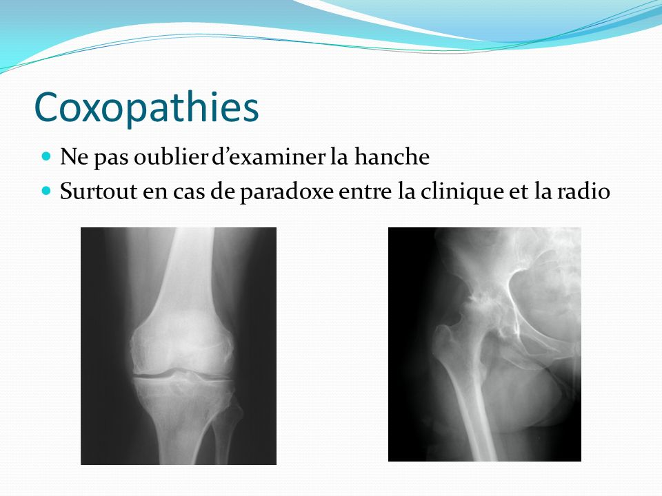 Coxopathies Ne pas oublier dexaminer la hanche Surtout en cas de paradoxe entre la clinique et la radio