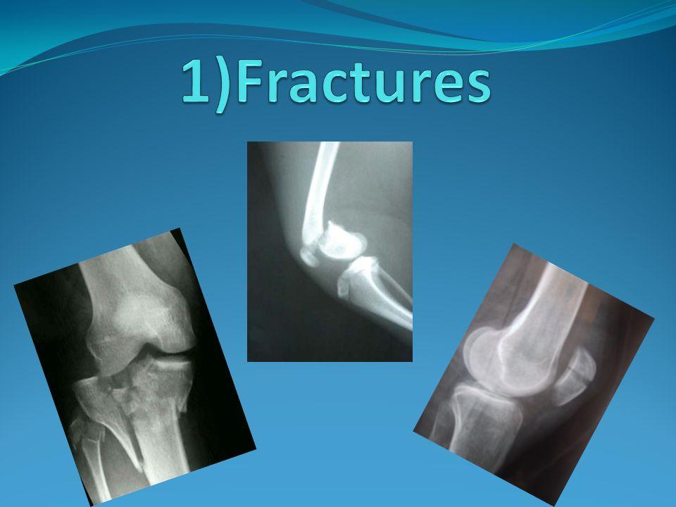 Ligamentoplastie MPFL Autogreffe du tendon du Demi Tendineux pour remplacer le MPFL +/- section du LPFL Sous contrôle arthroscopique Appui autorisé immédiatement Reprise de sport après 03 mois de rééducation