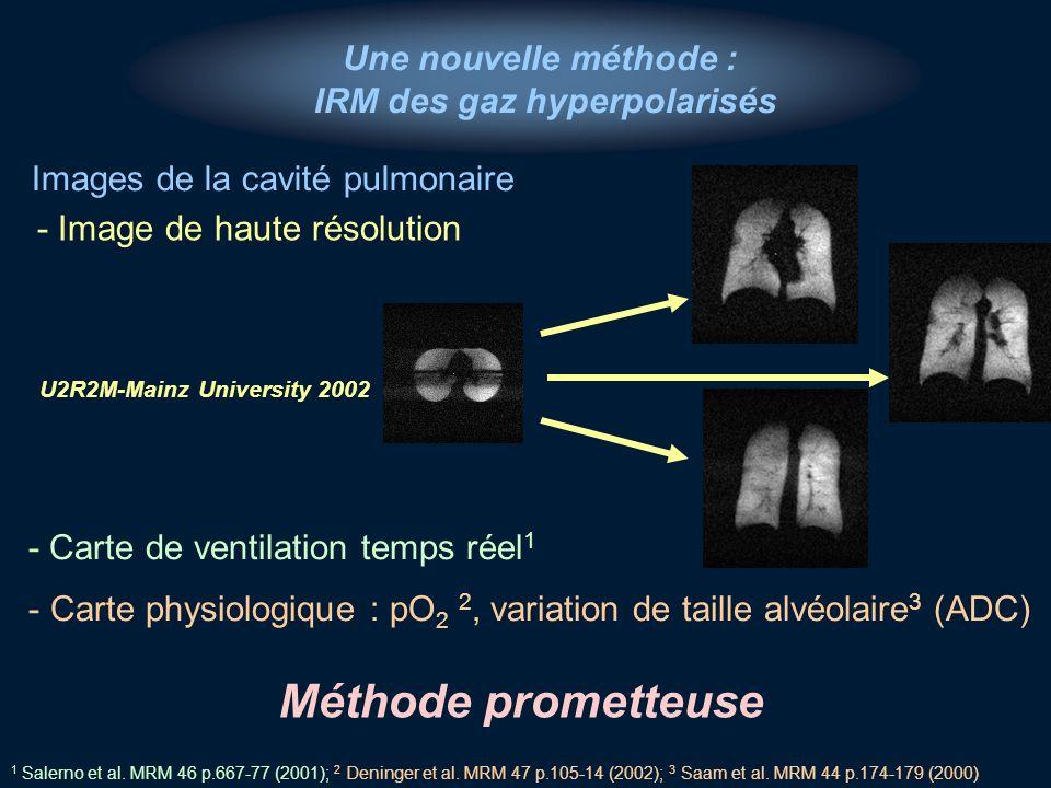 Une nouvelle méthode : IRM des gaz hyperpolarisés - Image de haute résolution - Carte de ventilation temps réel 1 - Carte physiologique : pO 2 2, vari