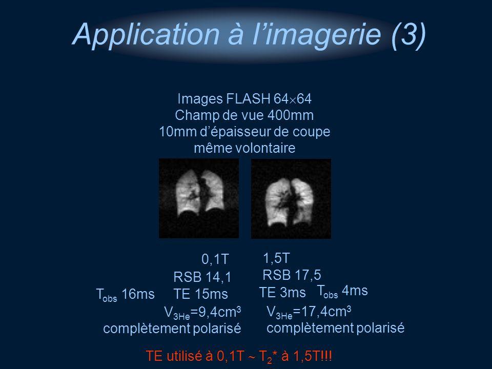 0,1T Images FLASH 64 64 Champ de vue 400mm 10mm dépaisseur de coupe même volontaire 1,5T TE utilisé à 0,1T T 2 * à 1,5T!!! Application à limagerie (3)