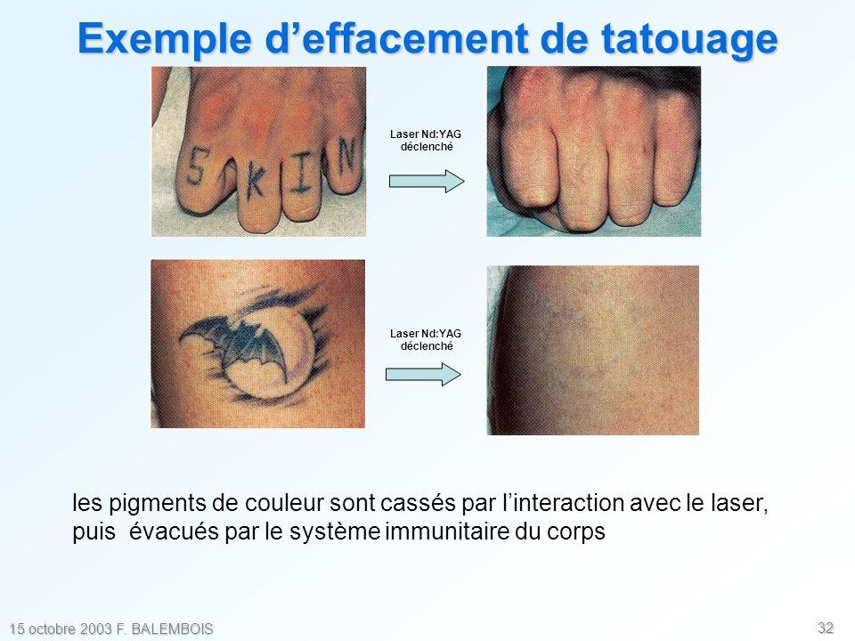 32 15 octobre 2003 F. BALEMBOIS Laser Nd:YAG déclenché Laser Nd:YAG déclenché Exemple deffacement de tatouage les pigments de couleur sont cassés par