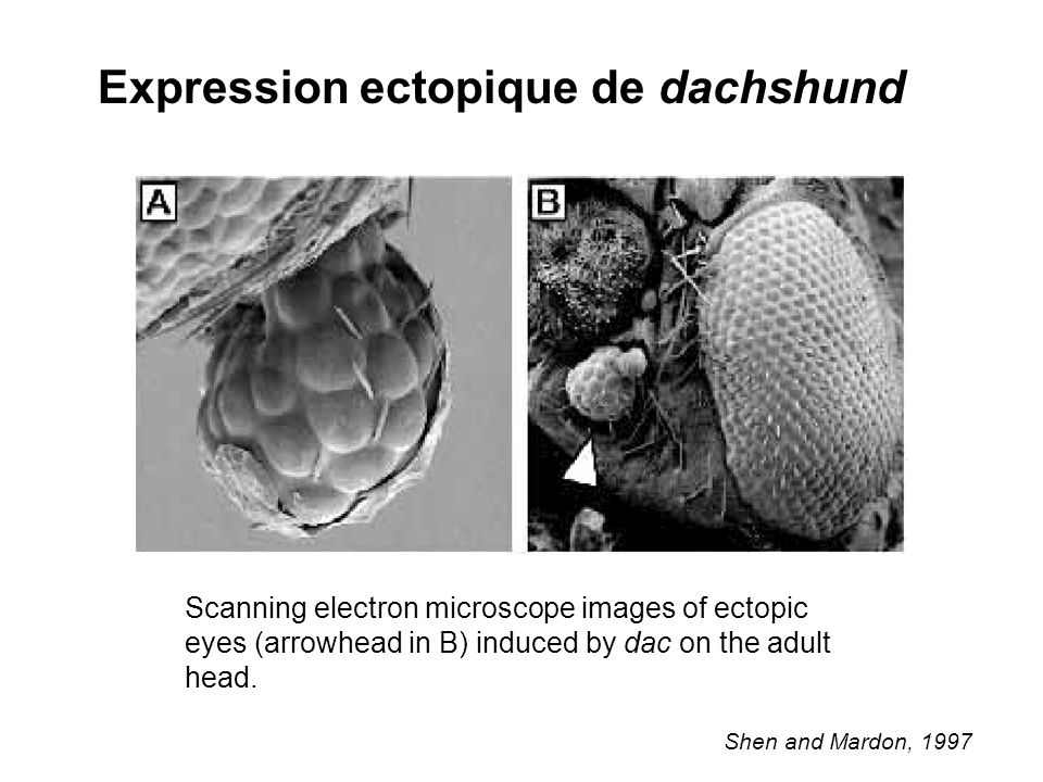 Expression ectopique de dachshund Shen and Mardon, 1997 Scanning electron microscope images of ectopic eyes (arrowhead in B) induced by dac on the adu