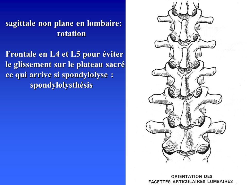 sagittale non plane en lombaire: rotation Frontale en L4 et L5 pour éviter le glissement sur le plateau sacré ce qui arrive si spondylolyse : spondylolysthésis