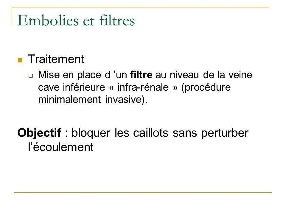 Embolies et filtres Traitement Mise en place d un filtre au niveau de la veine cave inférieure « infra-rénale » (procédure minimalement invasive).