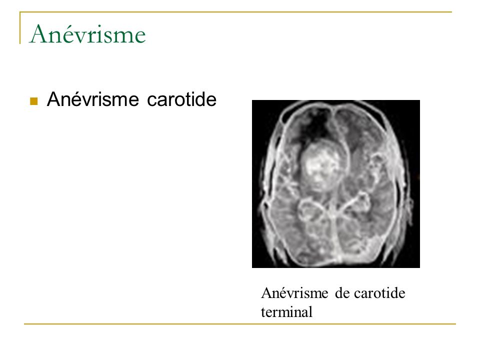 Anévrisme Anévrisme carotide Anévrisme de carotide terminal