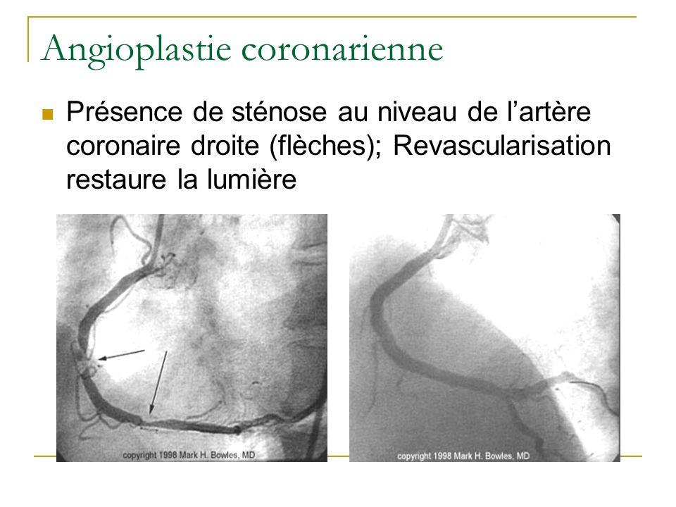 Angioplastie coronarienne Présence de sténose au niveau de lartère coronaire droite (flèches); Revascularisation restaure la lumière
