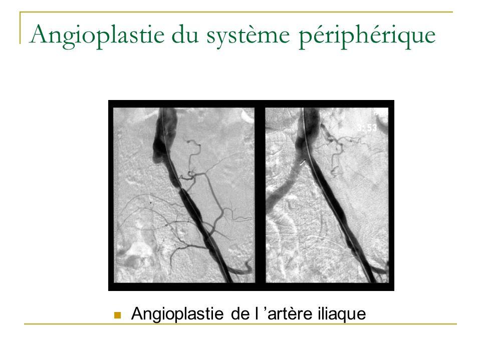 Angioplastie rénale