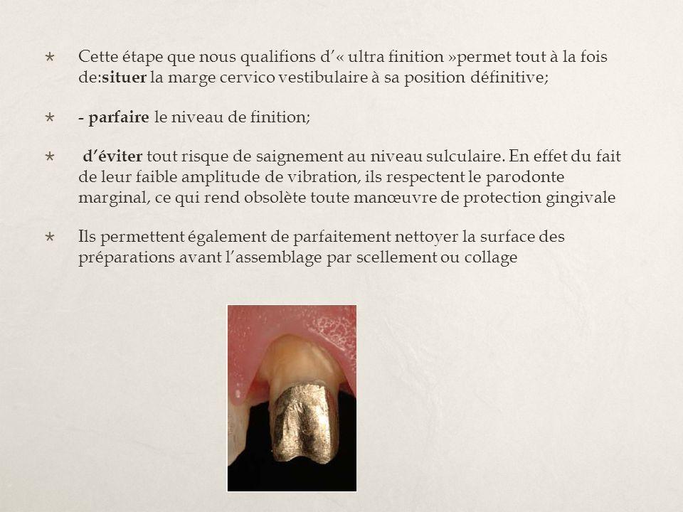 Cette étape que nous qualions d« ultra nition »permet tout à la fois de: situer la marge cervico vestibulaire à sa position dénitive; - parfaire le ni