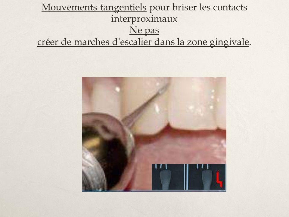 Mouvements tangentiels pour briser les contacts interproximaux Ne pas créer de marches d escalier dans la zone gingivale.
