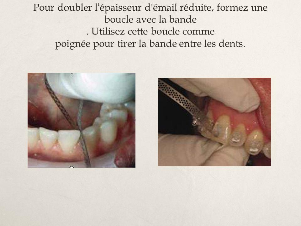 Pour doubler l épaisseur d'émail réduite, formez une boucle avec la bande. Utilisez cette boucle comme poignée pour tirer la bande entre les dents.
