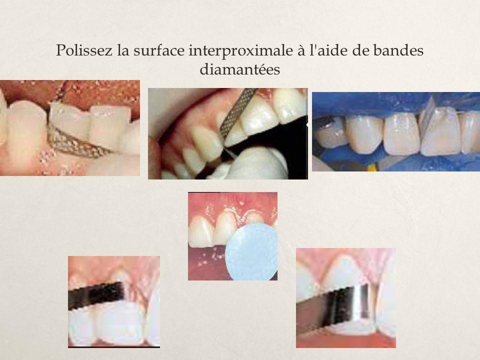 Polissez la surface interproximale à l'aide de bandes diamantées