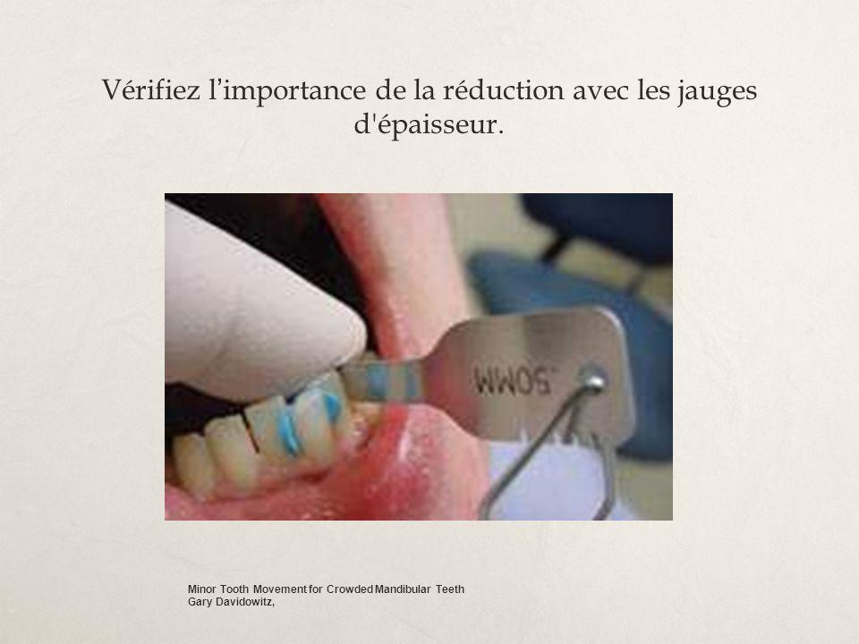 Vérifiez l importance de la réduction avec les jauges d'épaisseur. Minor Tooth Movement for Crowded Mandibular Teeth Gary Davidowitz,