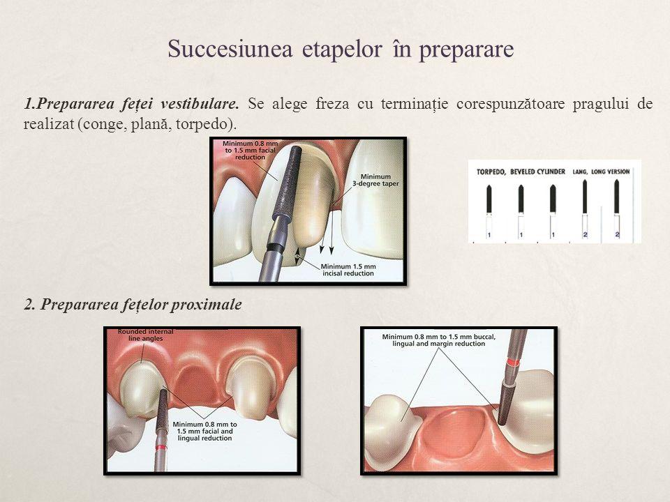 Succesiunea etapelor în preparare 1.Prepararea feţei vestibulare. Se alege freza cu terminaţie corespunzătoare pragului de realizat (conge, plană, tor
