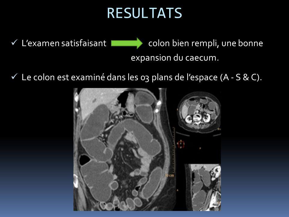RESULTATS Lexamen satisfaisant colon bien rempli, une bonne expansion du caecum.