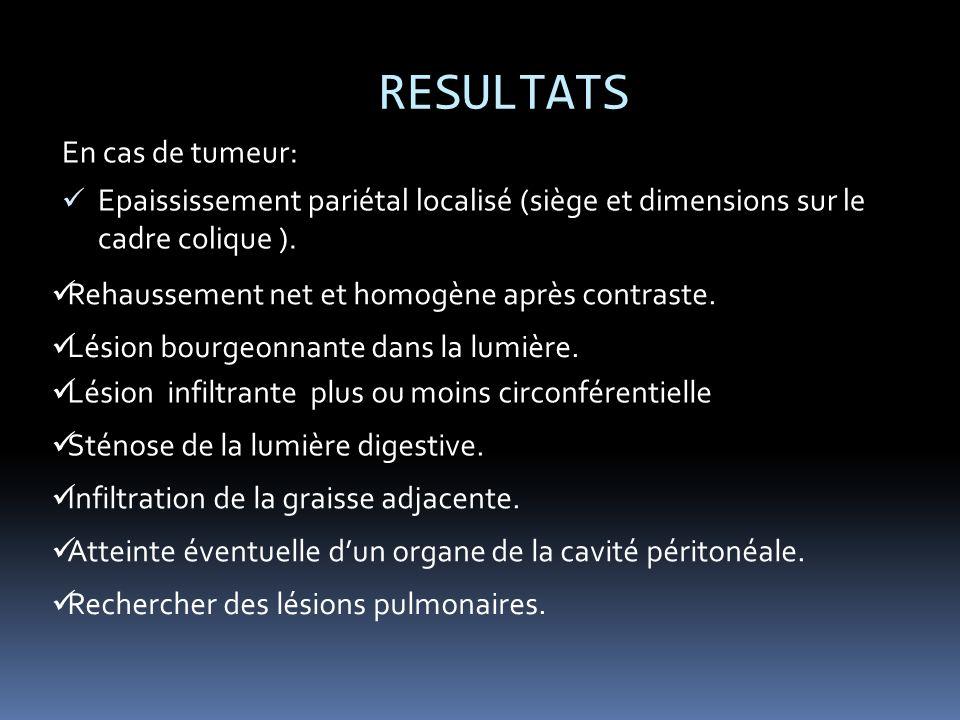 RESULTATS En cas de tumeur: Epaississement pariétal localisé (siège et dimensions sur le cadre colique ).
