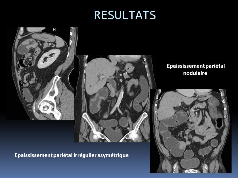 RESULTATS Epaississement pariétal irrégulier asymétrique Epaississement pariétal nodulaire