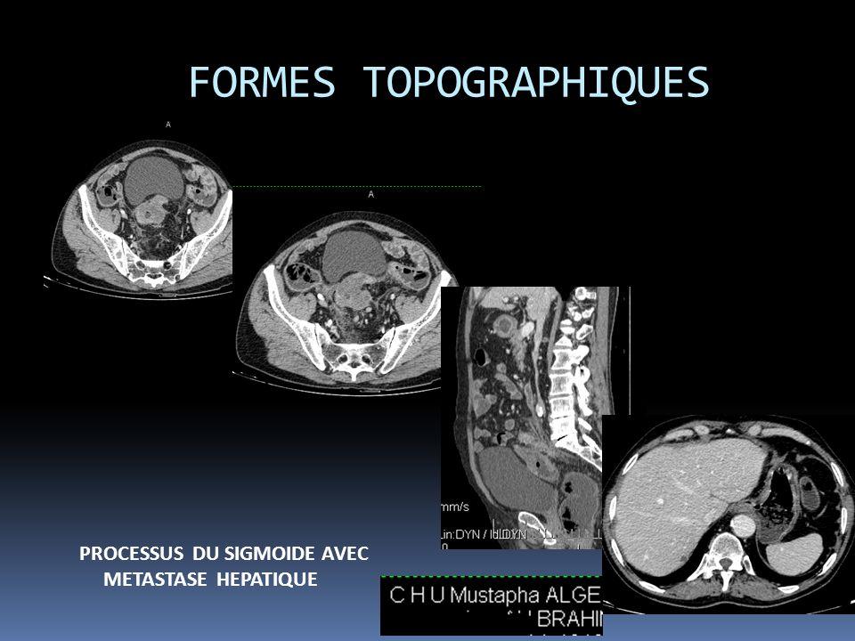 FORMES TOPOGRAPHIQUES PROCESSUS DU SIGMOIDE AVEC METASTASE HEPATIQUE