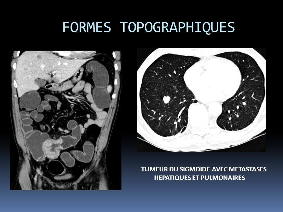 FORMES TOPOGRAPHIQUES TUMEUR DU SIGMOIDE AVEC METASTASES HEPATIQUES ET PULMONAIRES