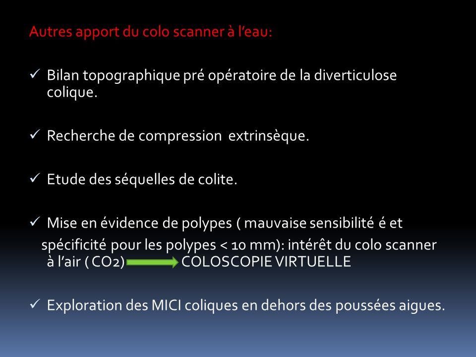 Autres apport du colo scanner à leau: Bilan topographique pré opératoire de la diverticulose colique.