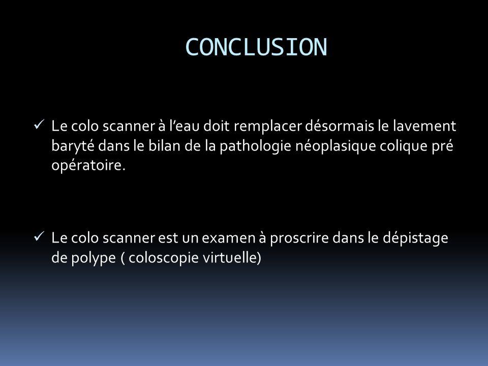 CONCLUSION Le colo scanner à leau doit remplacer désormais le lavement baryté dans le bilan de la pathologie néoplasique colique pré opératoire.