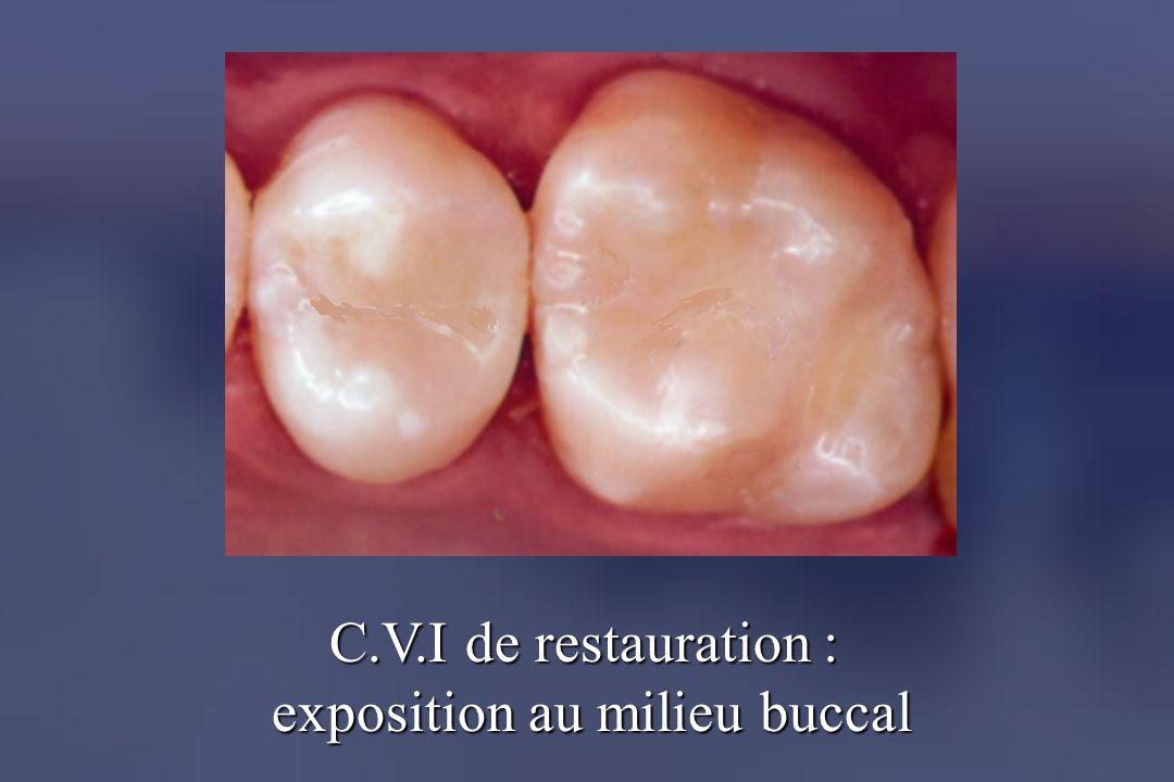 C.V.I de restauration : exposition au milieu buccal